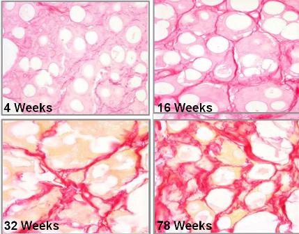 Hình ảnh về việc kích thích sản sinh collagen